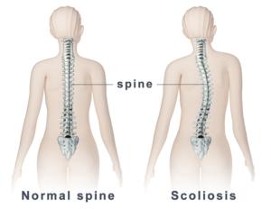 schroth therapie scoliose